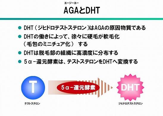 AGAとDHT